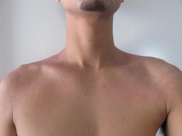 オーストラリア アトピー 湿疹 完治